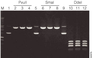 Rapid digestion of the pSP72 Vector using the restriction enzymes PvuII, SmaI and DdeI.